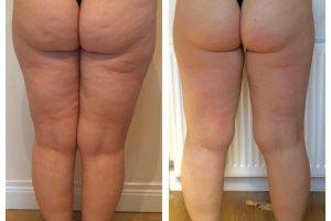 Lipofirm Pro B&A Legs - Copy