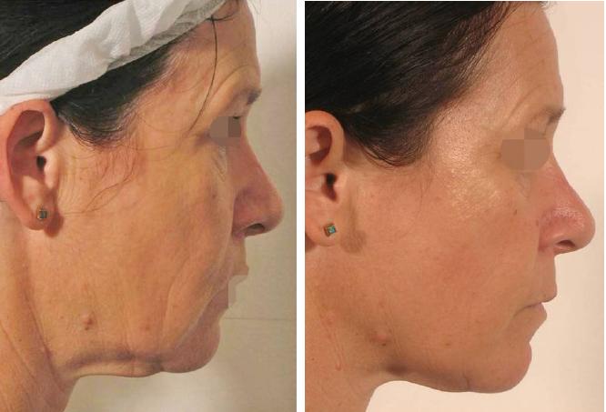 Lipofirm-Pro-face-BA2