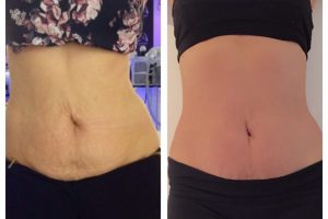 LipofirmPro Before and After 3 sessions_The Beautician