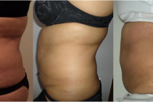 LipofirmPro after 9 treatmenst